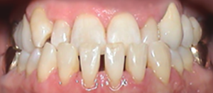 Invisalign® die unsichtbare Zahnspange - Prof. Dr. med
